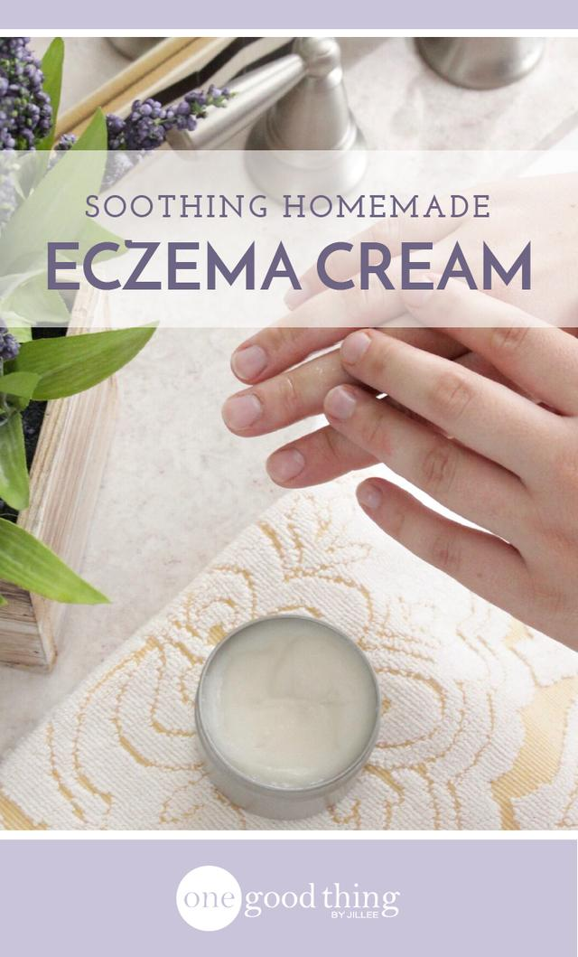 A Natural Eczema Cream That Will Soothe Itchy And Irritated