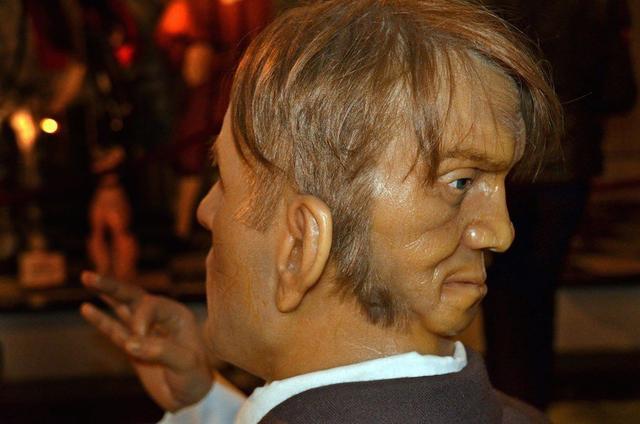 Veja o homem amaldiçoado com duas faces!