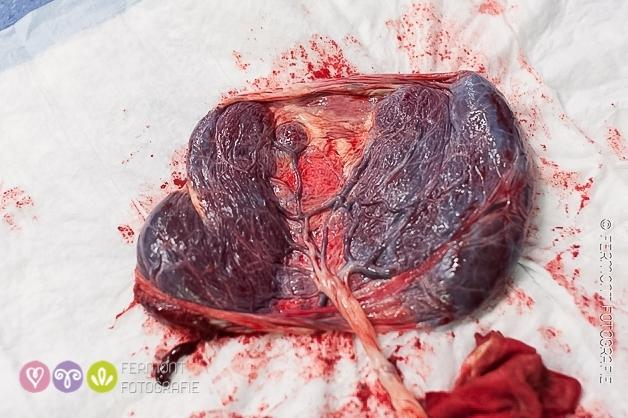 Incredible photos showcase the wonder of the placenta