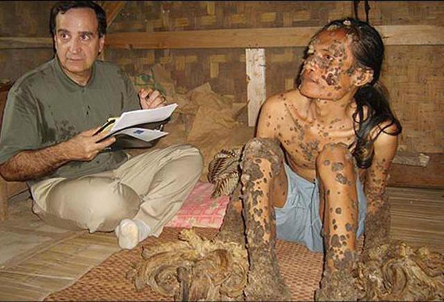 TreeMan Disease, A Rarest Disease Grows Tree Syndrome on Skin, People Suffering Epidermodysplasia Verruciformis Disease