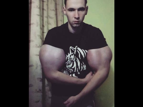 Real-life Story Of A Man Who Became Hulk In 10 Days!_国际_蛋蛋赞