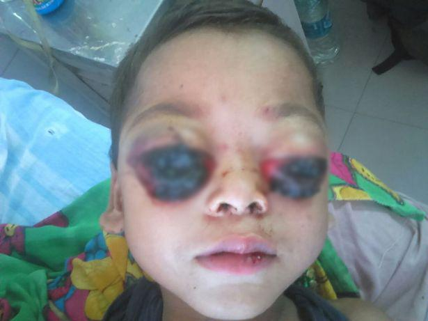4-Year-Old Kid's Eyes Bleed And Pop Out Due To Mysterious Condition, Making Him Blind