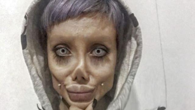 Most Horrific Cosmetic Surgery Ever ! Read The Story !