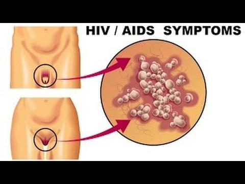 hiv signs and symptoms What is hiv human immunodeficiency virus (hiv) is the virus that is responsible  for causing acquired immune deficiency syndrome (aids) the virus destroys.