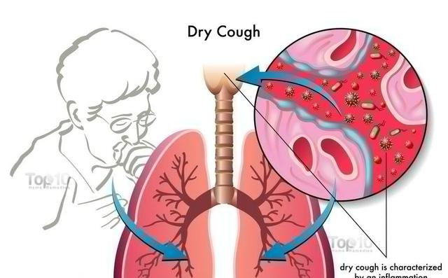 Dust In Lungs Home Remedy