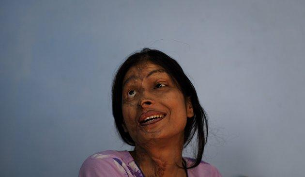 Muslim women acid attacks