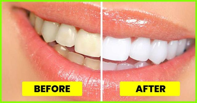 Must Try 4 Simple Ways To Naturally Whiten Your Teeth At Home 国际