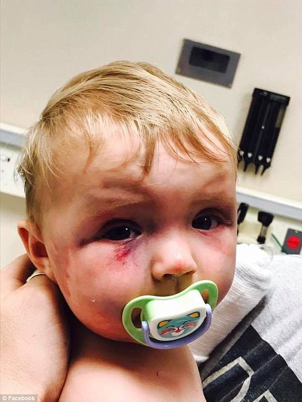 Mom beats baby black and blue with a spoon, judge's