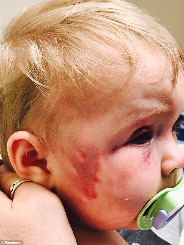 Mom beats baby black and blue with a spoon, judge's punishment