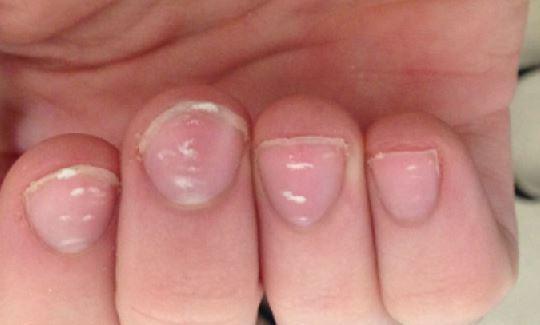 Nails White Spots Best Nail Designs 2018