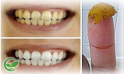 We are talking about making your own organic toothpaste and teeth whitener. Our recipe will convince you to stay away from most oral hygiene products for ...