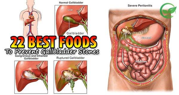 22 best foods to prevent gallbladder stones one of the bodys smallest organs is the gallbladder this organ is placed right under the liver main action is to collects bile necessary for the ccuart Gallery