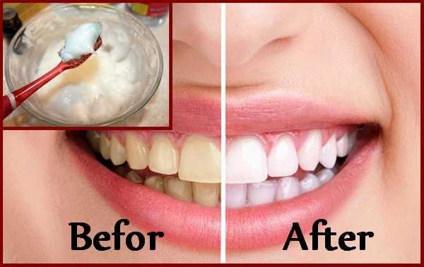 7 Natural Ways To Whiten Your Teeth At Home In 3 Minutes