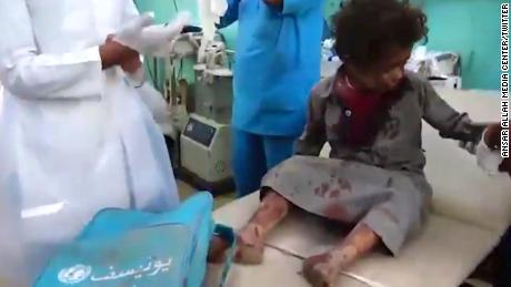 UN chief calls for investigation into Saudi-led strike that killed Yemen children