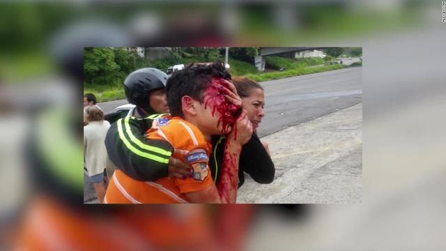 Venezuelan teen blinded after 52 rubber pellets to the face