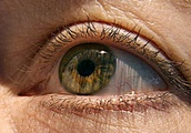 Glaucoma may be a curable autoimmune disease, say scientists