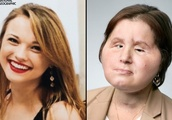 American 21-year-old becomes the youngest person in the US to have a face transplant