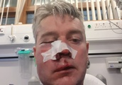 Referee left with broken jaw and serious facial injuries after alleged assault by Republic of Irelan
