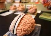 Footballers and rugby players 'six times more likely' to have degenerative brain disease - British