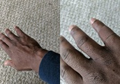 Man wears bandage that blends in with his skin tone, and Twitter has all the feelings