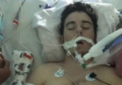North Texas Teen's Lung Collapse Leads To Heartfelt Warning About Vaping