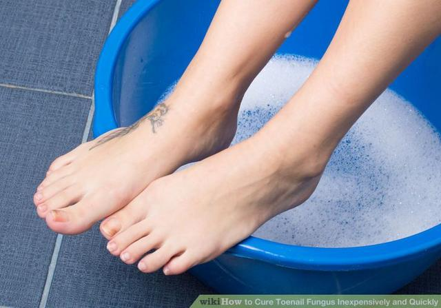 How to Cure Toenail Fungus Inexpensively and Quickly