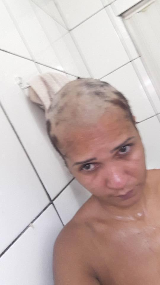 Mulher usa alisante de marca conhecida e perde todo o cabelo. Veja o que aconteceu: