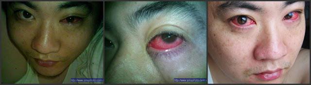 Homem é diagnosticado com câncer nos olhos por algo simples que