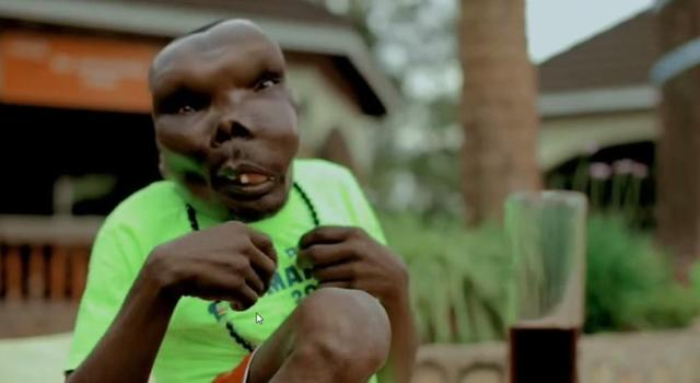 He Won A Guinness World Record For Being The UGLIEST Man Alive... But You Won't BELIEVE What He Has Accomplished!