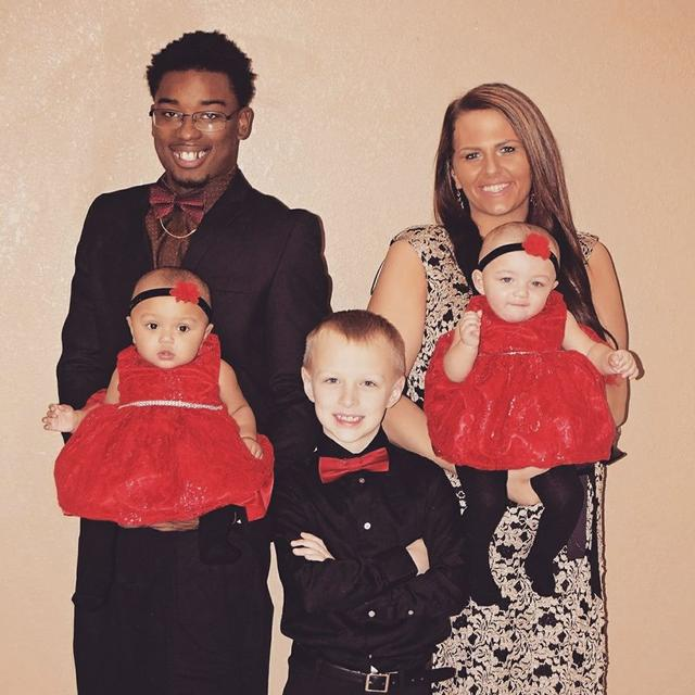 After This Mother Gave Birth To Twins, She Realized That One Of Them Looked Unusual