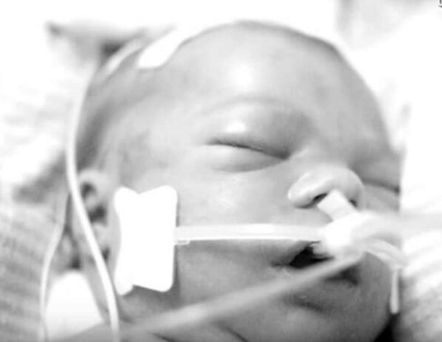 Bebê perde a vida durante o nascimento, mas um milagre acontece