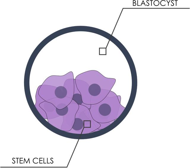 5c4be2faa تمثيل رسومي للخلايا الجذعية. الخطوة الثانية من عملية لعلاج مرض السكري من  النوع ...