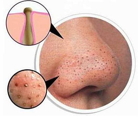 The Natural And Fast Way To Overcome The Stubborn Black Blackheads