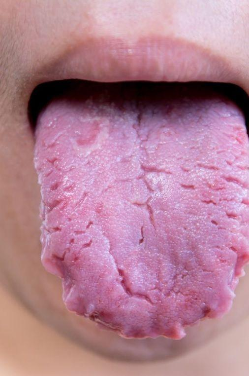 World Oral Health Day: 6 ways your tongue is warning you about your health