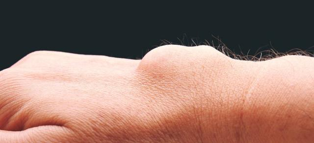 ganglion cyst natural remedy
