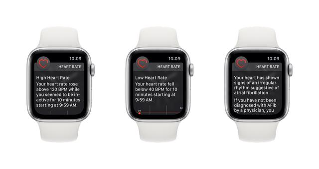 Apple Watch electrocardiogram and irregular heart rate features are available today
