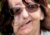 Christine Brown recovers from another face operation