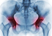 A Warning on Steroids for Joint Pain